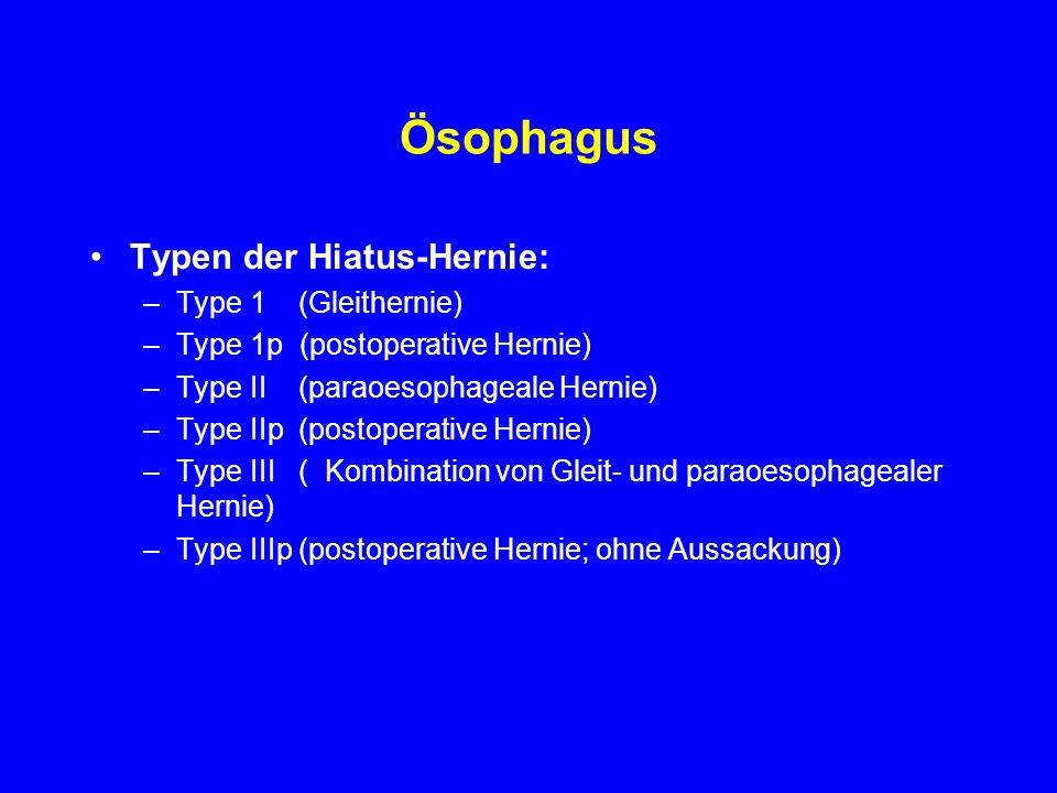Ösophagus Typen der Hiatus-Hernie: –Type 1 (Gleithernie) –Type 1p (postoperative Hernie) –Type II (paraoesophageale Hernie) –Type IIp (postoperative H