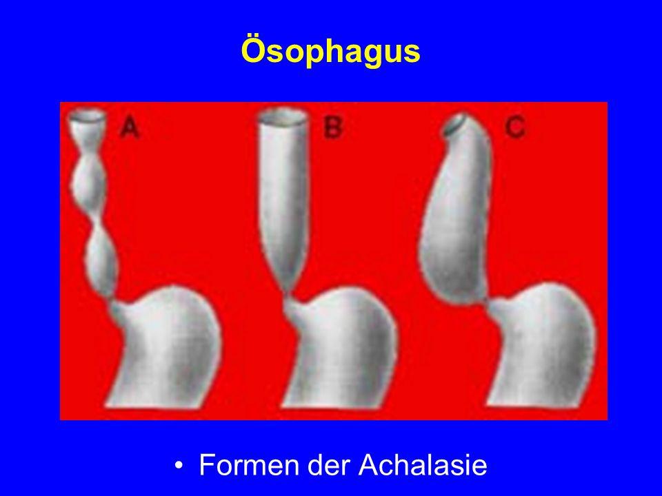 Ösophagus Formen der Achalasie