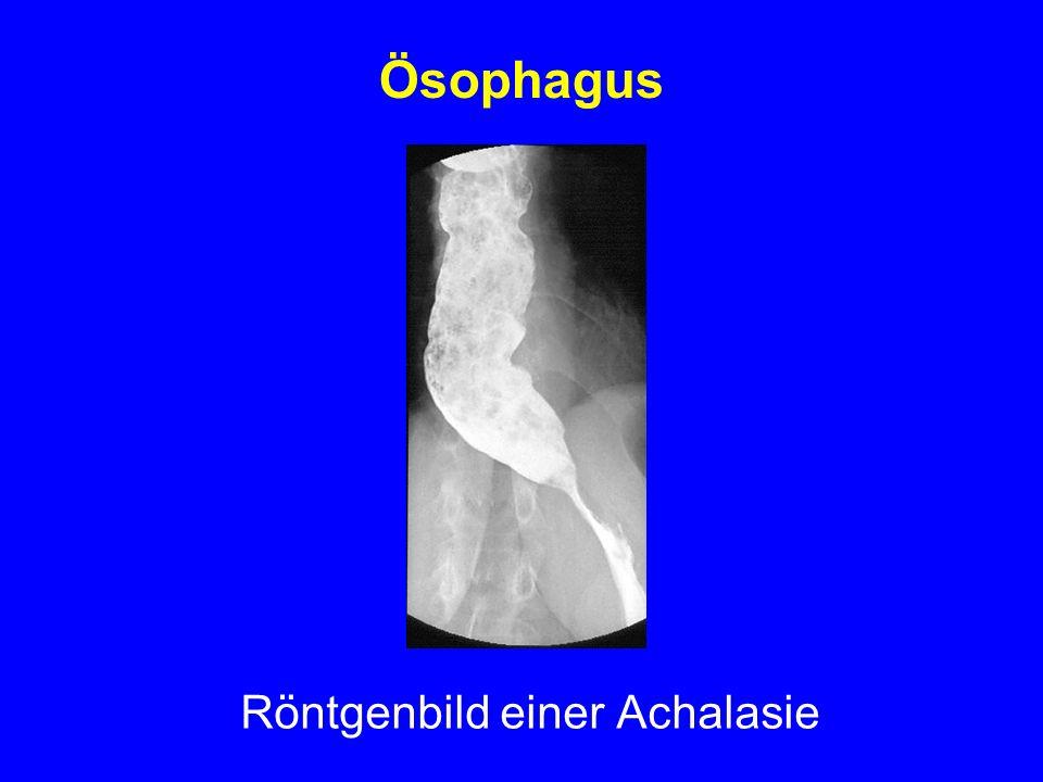 Ösophagus Röntgenbild einer Achalasie