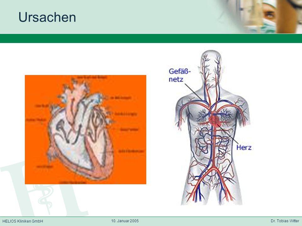 HELIOS Kliniken GmbH 10. Januar 2005 Dr. Tobias Witter Ursachen