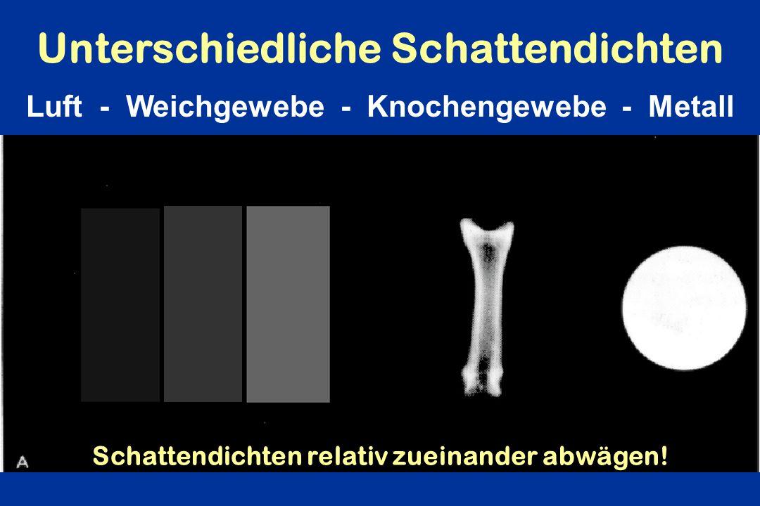 Unterschiedliche Schattendichten Luft - Weichgewebe - Knochengewebe - Metall Schattendichten relativ zueinander abwägen!