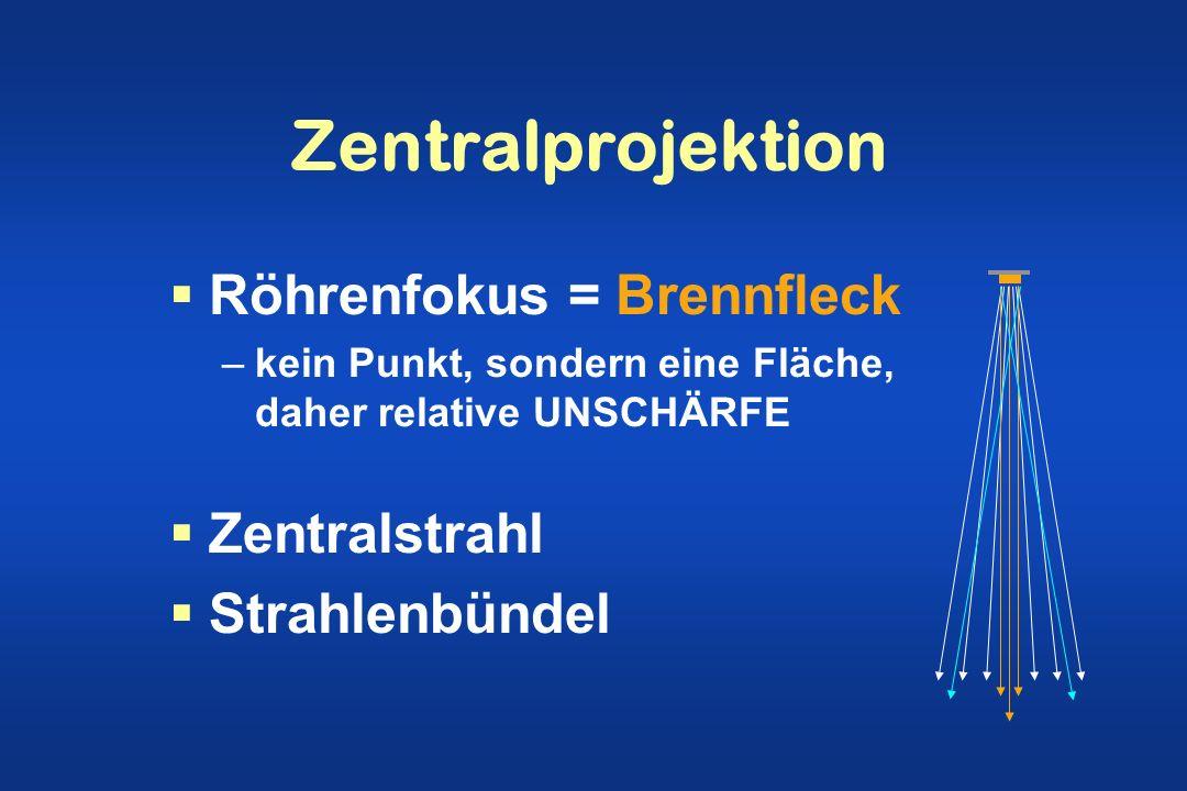 Zentralprojektion Röhrenfokus = Brennfleck –kein Punkt, sondern eine Fläche, daher relative UNSCHÄRFE Zentralstrahl Strahlenbündel