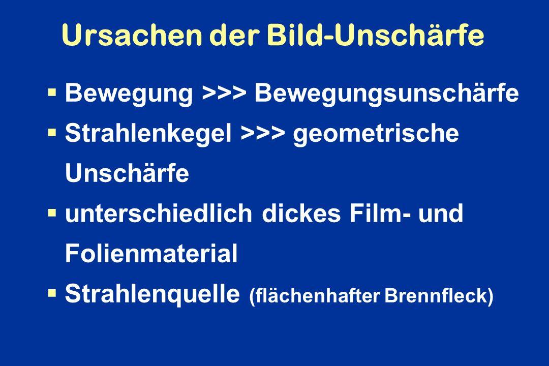 Ursachen der Bild-Unschärfe Bewegung >>> Bewegungsunschärfe Strahlenkegel >>> geometrische Unschärfe unterschiedlich dickes Film- und Folienmaterial S