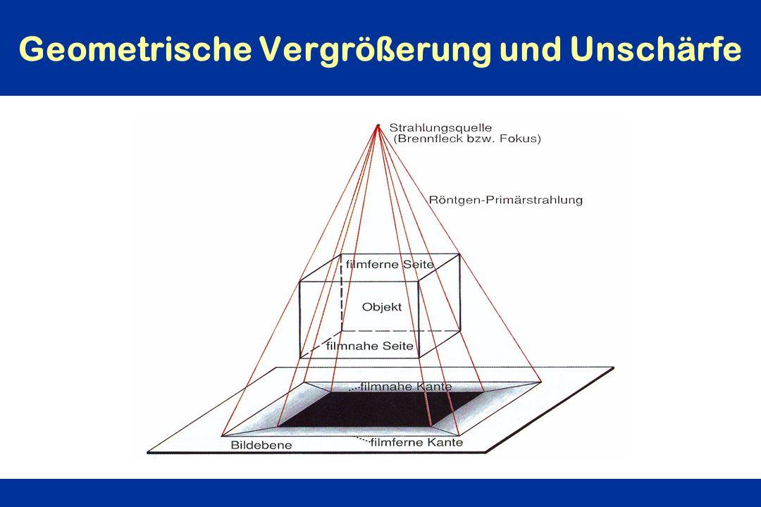 Geometrische Vergrößerung und Unschärfe