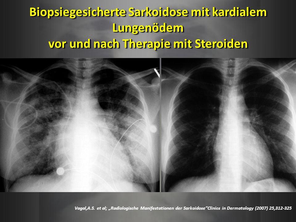 Biopsiegesicherte Sarkoidose mit kardialem Lungenödem vor und nach Therapie mit Steroiden Vagal,A.S. et al; Radiologische Manifestationen der Sarkoido