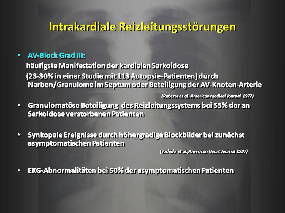 Intrakardiale Reizleitungsstörungen AV-Block Grad III: AV-Block Grad III: häufigste Manifestation der kardialen Sarkoidose häufigste Manifestation der