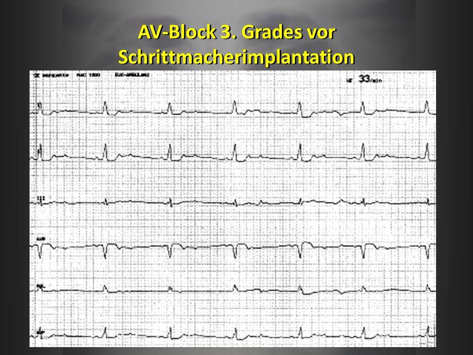 AV-Block 3. Grades vor Schrittmacherimplantation