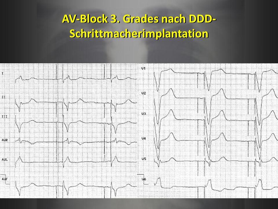 AV-Block 3. Grades nach DDD- Schrittmacherimplantation