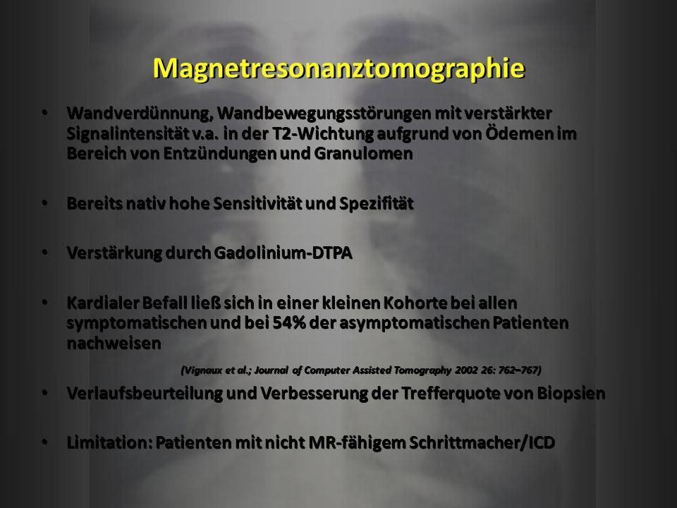 Magnetresonanztomographie Wandverdünnung, Wandbewegungsstörungen mit verstärkter Signalintensität v.a. in der T2-Wichtung aufgrund von Ödemen im Berei