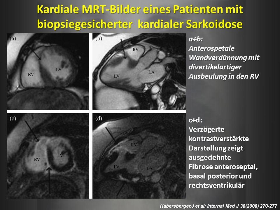 Habersberger,J et al; Internal Med J 38(2008) 270-277 a+b: Anterospetale Wandverdünnung mit divertikelartiger Ausbeulung in den RV c+d:Verzögertekontr