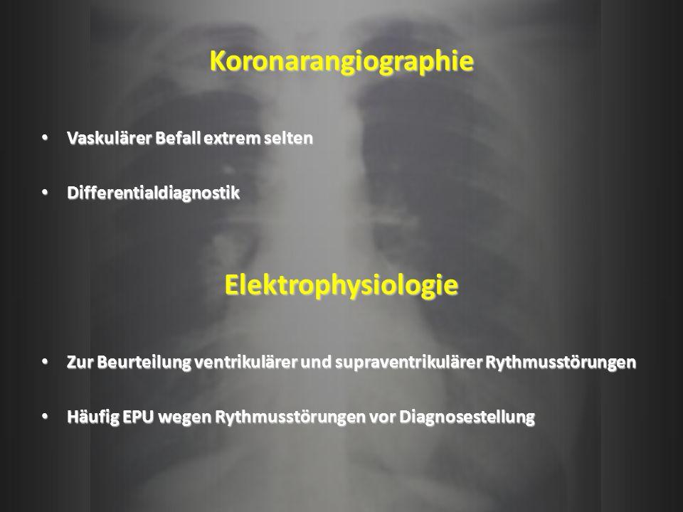 Koronarangiographie Vaskulärer Befall extrem selten Vaskulärer Befall extrem selten Differentialdiagnostik DifferentialdiagnostikElektrophysiologie Zu