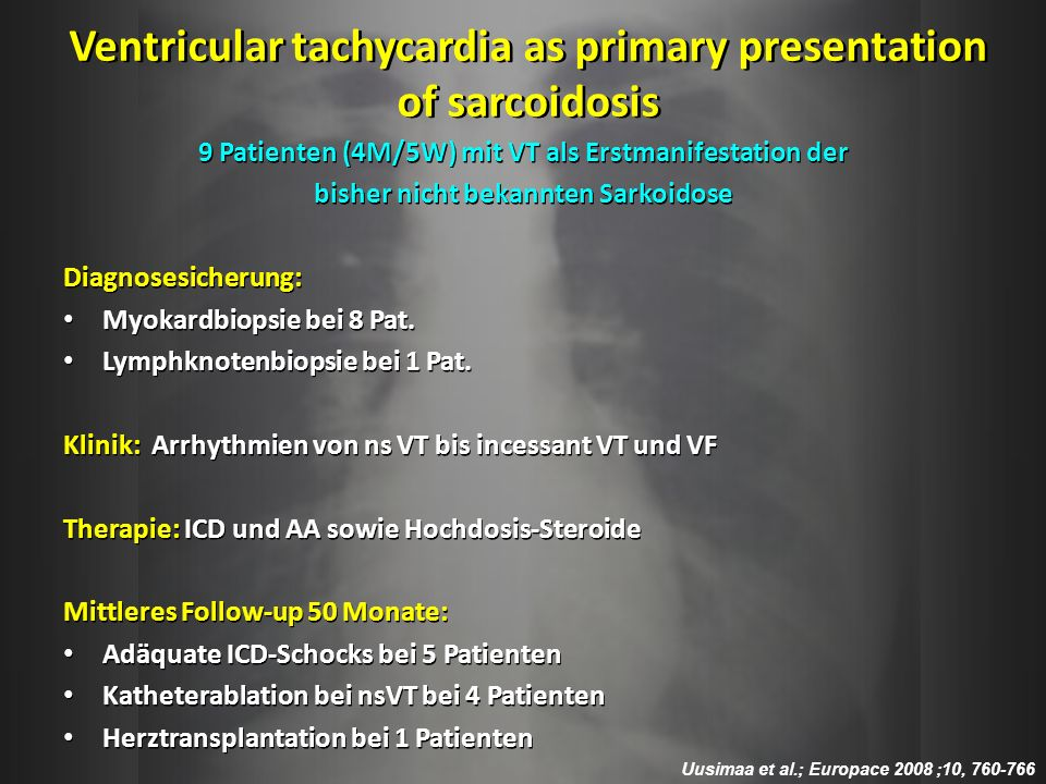 Ventricular tachycardia as primary presentation of sarcoidosis 9 Patienten (4M/5W) mit VT als Erstmanifestation der bisher nicht bekannten Sarkoidose