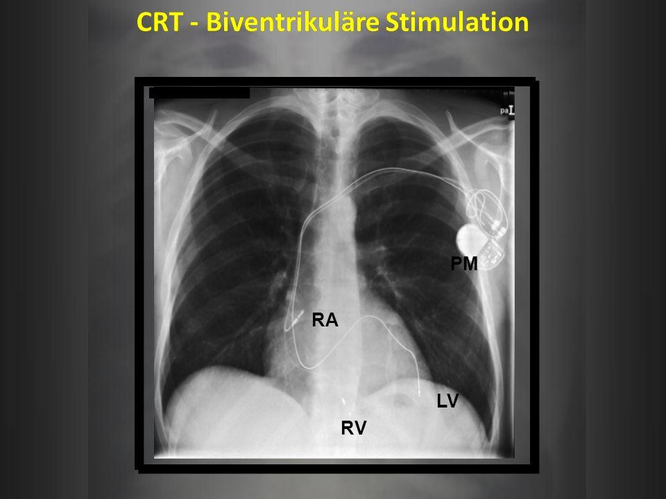 CRT - Biventrikuläre Stimulation RV LV RA PM