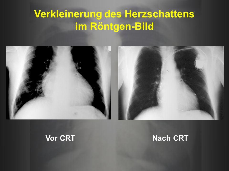 Verkleinerung des Herzschattens im Röntgen-Bild Vor CRTNach CRT