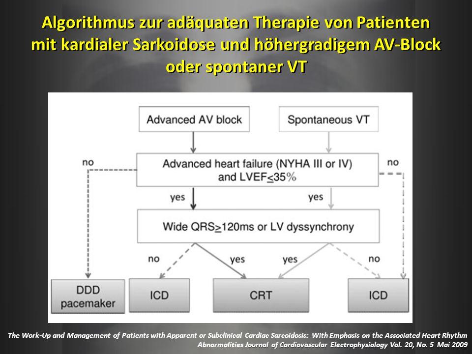 Algorithmus zur adäquaten Therapie von Patienten mit kardialer Sarkoidose und höhergradigem AV-Block oder spontaner VT ournal of Cardiovascular Electr