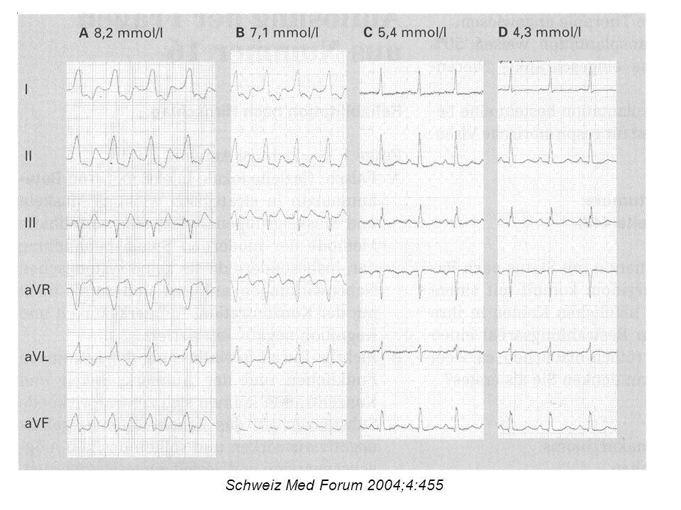 Low dose Spironolacton & Hyperkaliämie 125 Patienten mit Herzinsuffizienz und Spironolacton (low dose) 370 Tage lang in Bezug auf Serumkreatinin und Serumkalium verfolgt Multivariate Analyse mit der Frage nach Risikofaktoren für Azotämie und Hyperkaliämie Br Med J 2003;1141-2