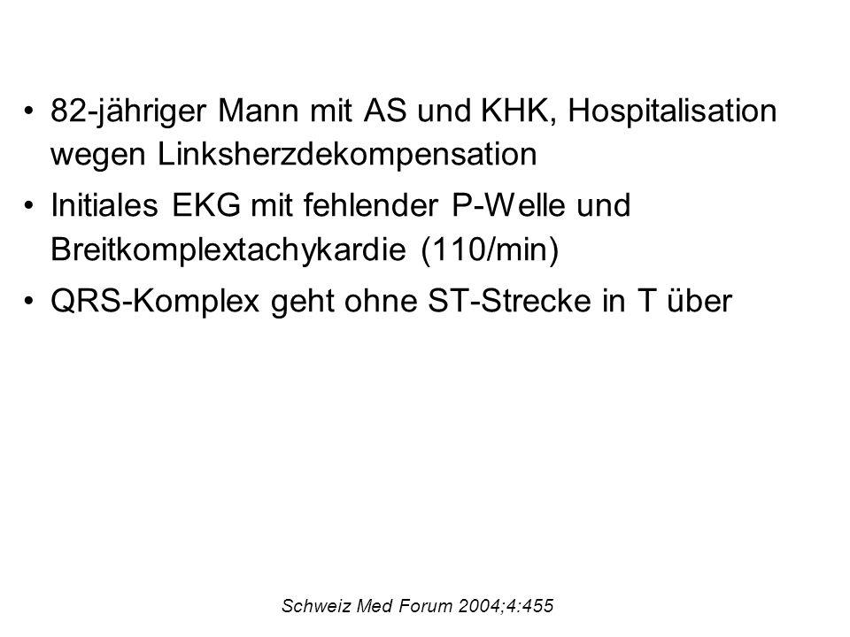 82-jähriger Mann mit AS und KHK, Hospitalisation wegen Linksherzdekompensation Initiales EKG mit fehlender P-Welle und Breitkomplextachykardie (110/min) QRS-Komplex geht ohne ST-Strecke in T über Schweiz Med Forum 2004;4:455
