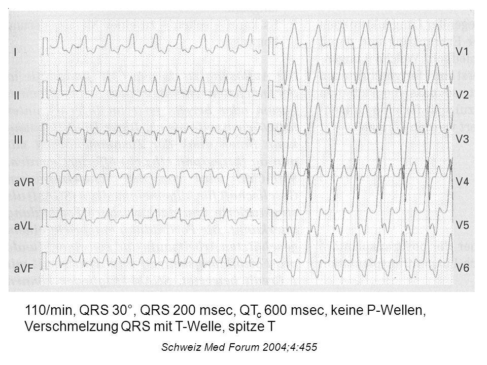 110/min, QRS 30°, QRS 200 msec, QT c 600 msec, keine P-Wellen, Verschmelzung QRS mit T-Welle, spitze T Schweiz Med Forum 2004;4:455