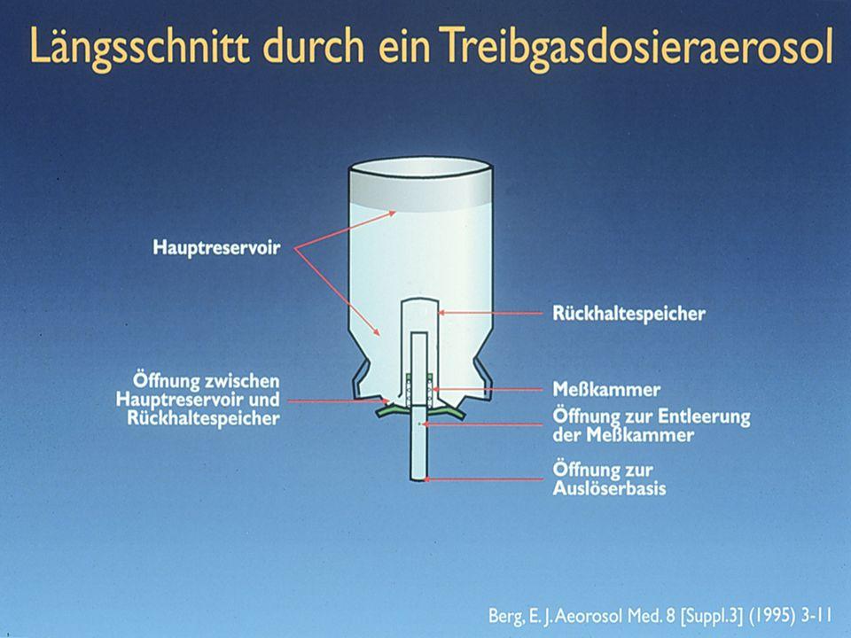Erforderliche Kraft zur Perforation 23 N 20 N 17 N © W. Kircher 17 N 20 N 23 N
