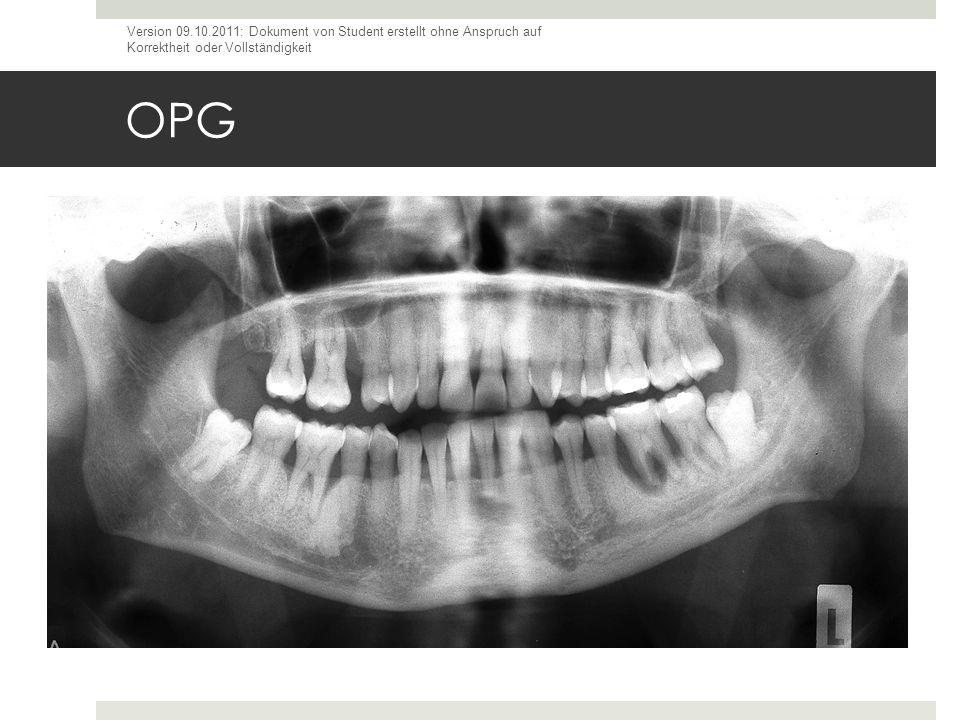 OPG Version 09.10.2011: Dokument von Student erstellt ohne Anspruch auf Korrektheit oder Vollständigkeit