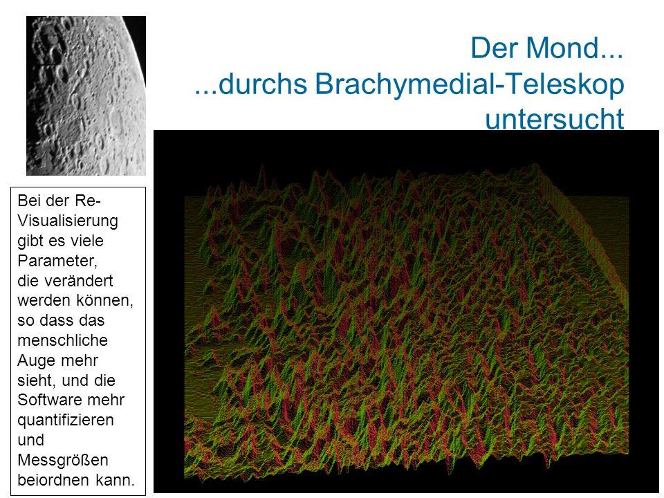 Der Mond......durchs Brachymedial-Teleskop untersucht Bei der Re- Visualisierung gibt es viele Parameter, die verändert werden können, so dass das menschliche Auge mehr sieht, und die Software mehr quantifizieren und Messgrößen beiordnen kann.