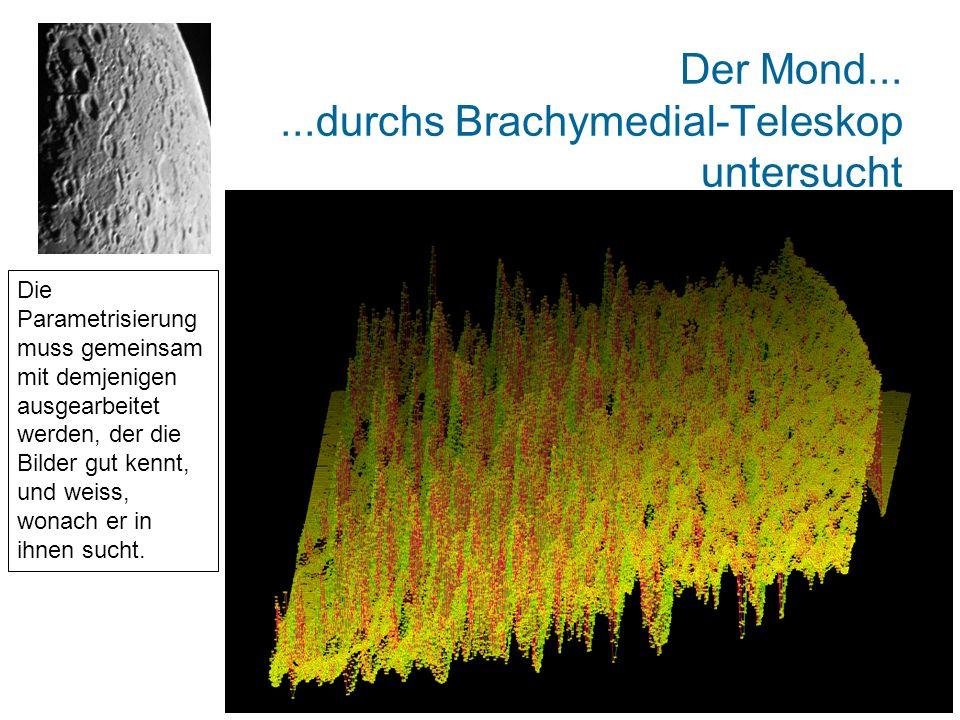 Der Mond......durchs Brachymedial-Teleskop untersucht Die Parametrisierung muss gemeinsam mit demjenigen ausgearbeitet werden, der die Bilder gut kennt, und weiss, wonach er in ihnen sucht.