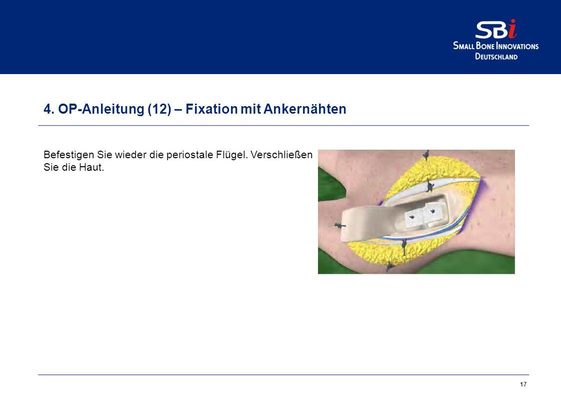 17 4.OP-Anleitung (12) – Fixation mit Ankernähten Befestigen Sie wieder die periostale Flügel.