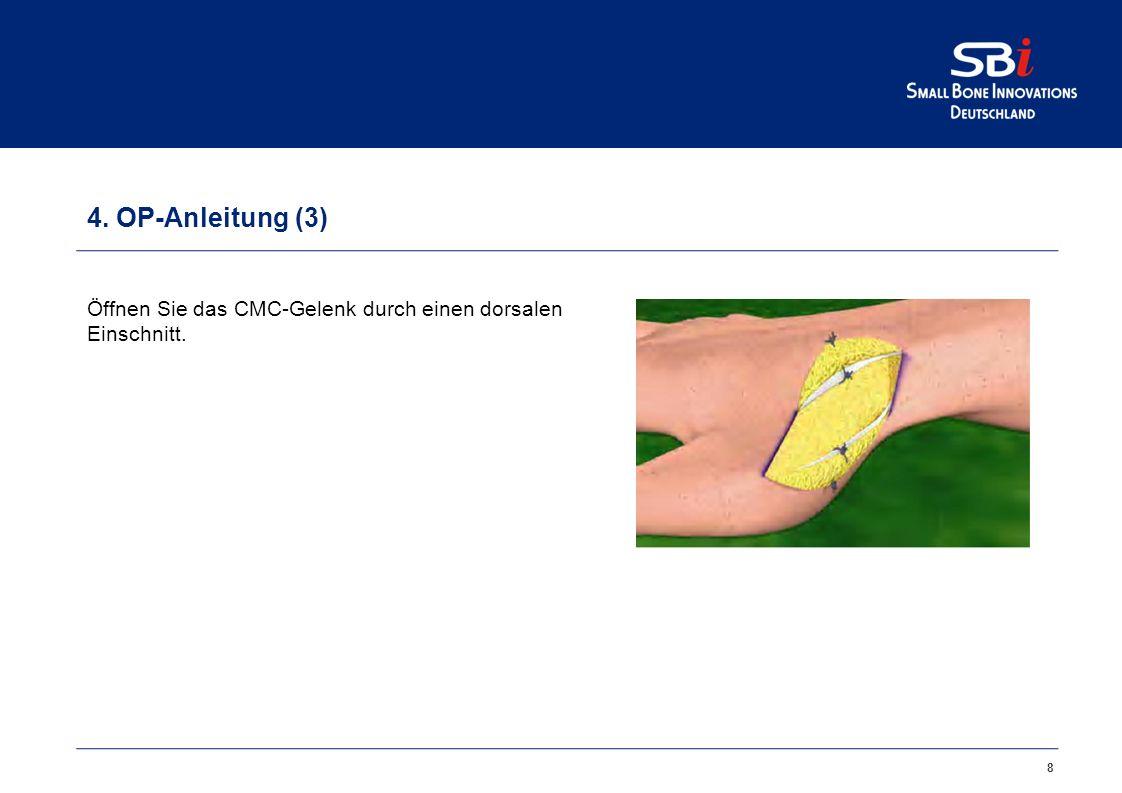 19 5.Artelon CMC Spacer auch für den arthroskopischen Eingriff .