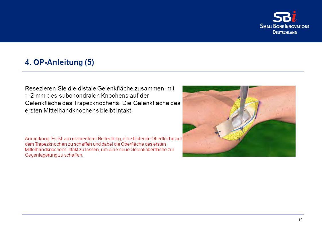 11 4. OP-Anleitung (6) Entfernen Sie die Osteophyten aus dem Gelenkspalt.