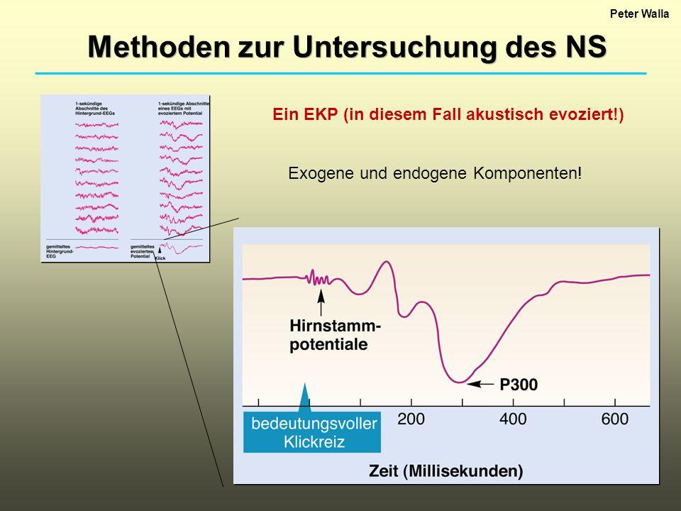 Peter Walla Methoden zur Untersuchung des NS Ein EKP (in diesem Fall akustisch evoziert!) Exogene und endogene Komponenten!