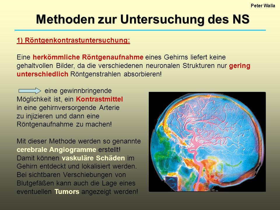 Peter Walla Die EEG-Daten wurden ursprünglich gesammelt, um neurophysiologische Unterschiede zwischen explizitem und implizitem Gedächtnis zu erforschen.