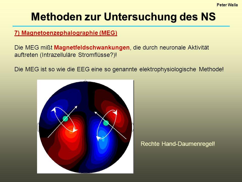 Peter Walla Methoden zur Untersuchung des NS 7) Magnetoenzephalographie (MEG) Die MEG mißt Magnetfeldschwankungen, die durch neuronale Aktivität auftreten (Intrazelluläre Stromflüsse?).