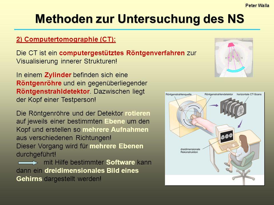 Peter Walla Methoden zur Untersuchung des NS :: Beispiel eines CT-scans :: keine sehr gute Auflösung!