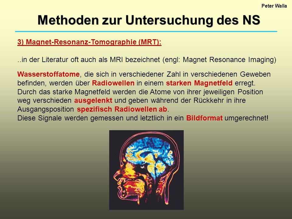 Peter Walla Methoden zur Untersuchung des NS 3) Magnet-Resonanz-Tomographie (MRT):..in der Literatur oft auch als MRI bezeichnet (engl: Magnet Resonan