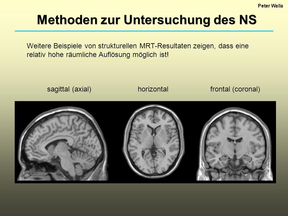 Peter Walla Methoden zur Untersuchung des NS Weitere Beispiele von strukturellen MRT-Resultaten zeigen, dass eine relativ hohe räumliche Auflösung mög