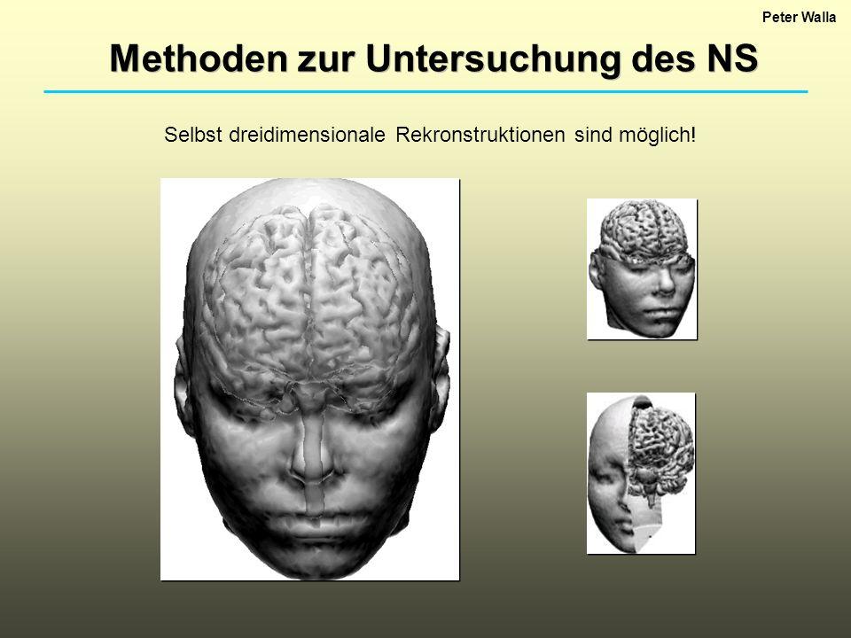 Peter Walla Methoden zur Untersuchung des NS Selbst dreidimensionale Rekronstruktionen sind möglich!