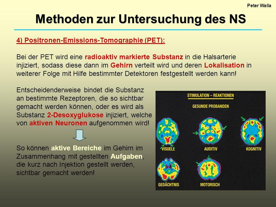 Peter Walla Methoden zur Untersuchung des NS 4) Positronen-Emissions-Tomographie (PET): Bei der PET wird eine radioaktiv markierte Substanz in die Hal
