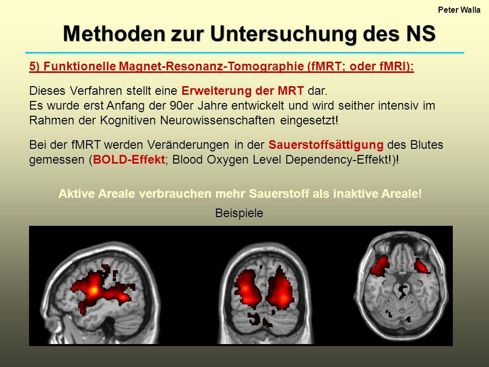 Peter Walla Methoden zur Untersuchung des NS 5) Funktionelle Magnet-Resonanz-Tomographie (fMRT; oder fMRI): Dieses Verfahren stellt eine Erweiterung der MRT dar.