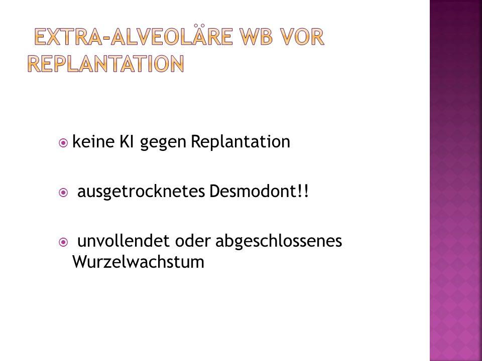 keine KI gegen Replantation ausgetrocknetes Desmodont!! unvollendet oder abgeschlossenes Wurzelwachstum