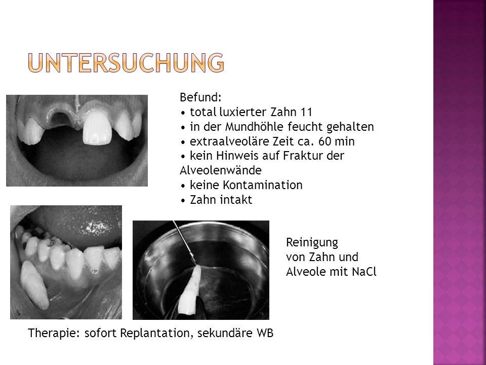 Befund: total luxierter Zahn 11 in der Mundhöhle feucht gehalten extraalveoläre Zeit ca. 60 min kein Hinweis auf Fraktur der Alveolenwände keine Konta