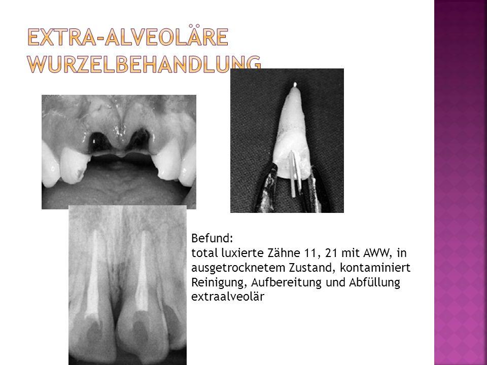 Befund: total luxierte Zähne 11, 21 mit AWW, in ausgetrocknetem Zustand, kontaminiert Reinigung, Aufbereitung und Abfüllung extraalveolär
