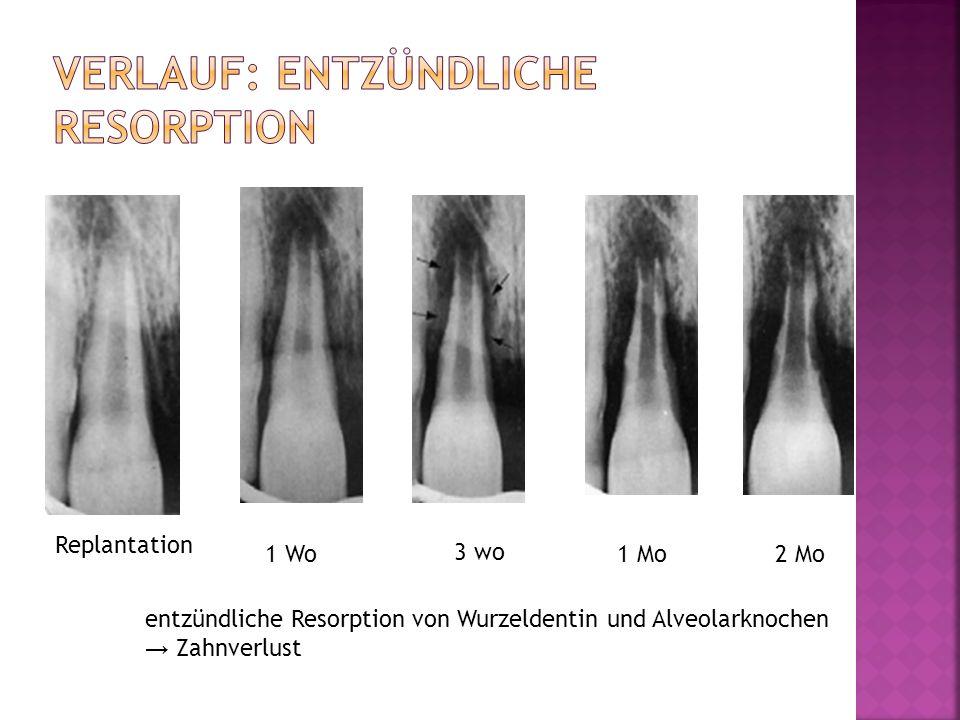 Replantation 1 Wo 3 wo 1 Mo2 Mo entzündliche Resorption von Wurzeldentin und Alveolarknochen Zahnverlust