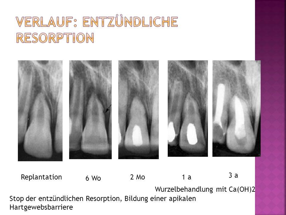 Replantation 6 Wo 2 Mo1 a 3 a Wurzelbehandlung mit Ca(OH)2 Stop der entzündlichen Resorption, Bildung einer apikalen Hartgewebsbarriere
