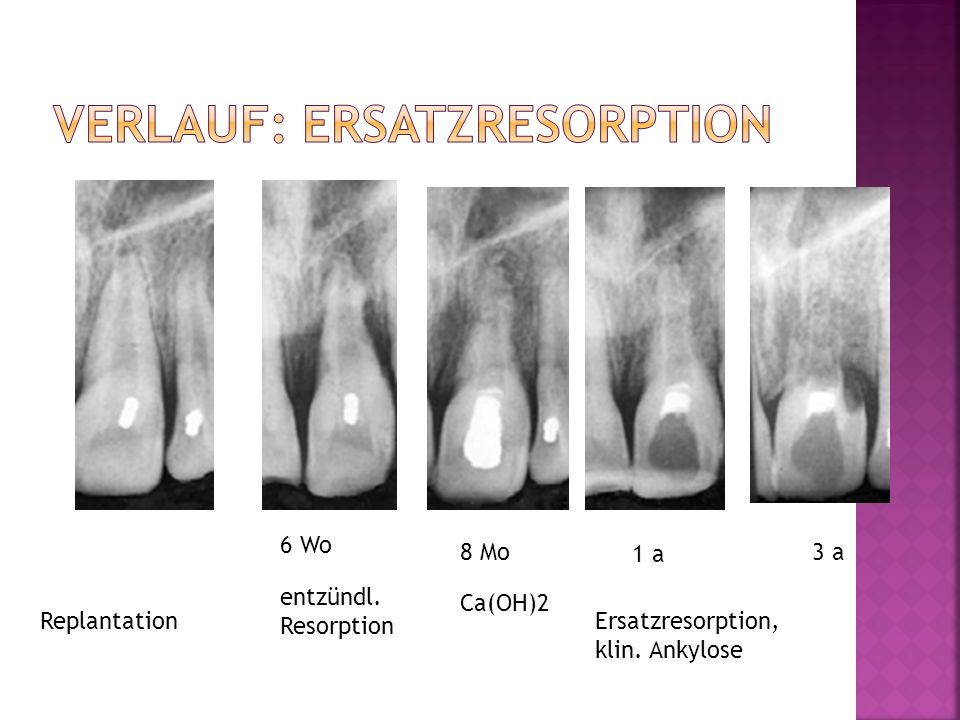 Replantation 6 Wo entzündl. Resorption 8 Mo Ca(OH)2 1 a Ersatzresorption, klin. Ankylose 3 a