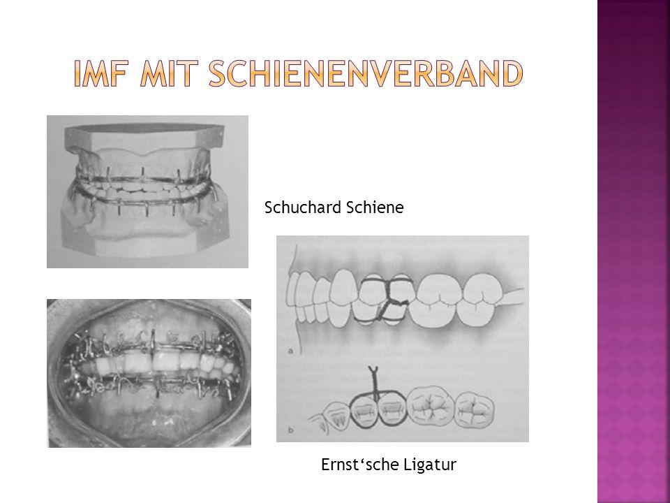 Schuchard Schiene Ernstsche Ligatur