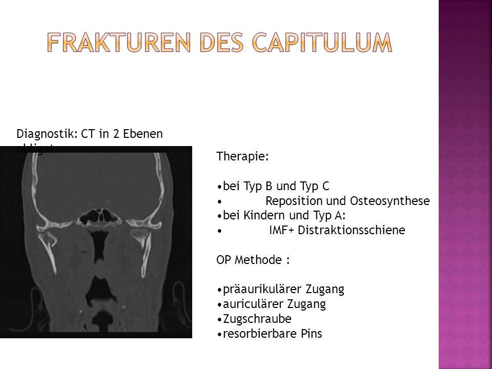 Diagnostik: CT in 2 Ebenen obligat Therapie: bei Typ B und Typ C Reposition und Osteosynthese bei Kindern und Typ A: IMF+ Distraktionsschiene OP Metho