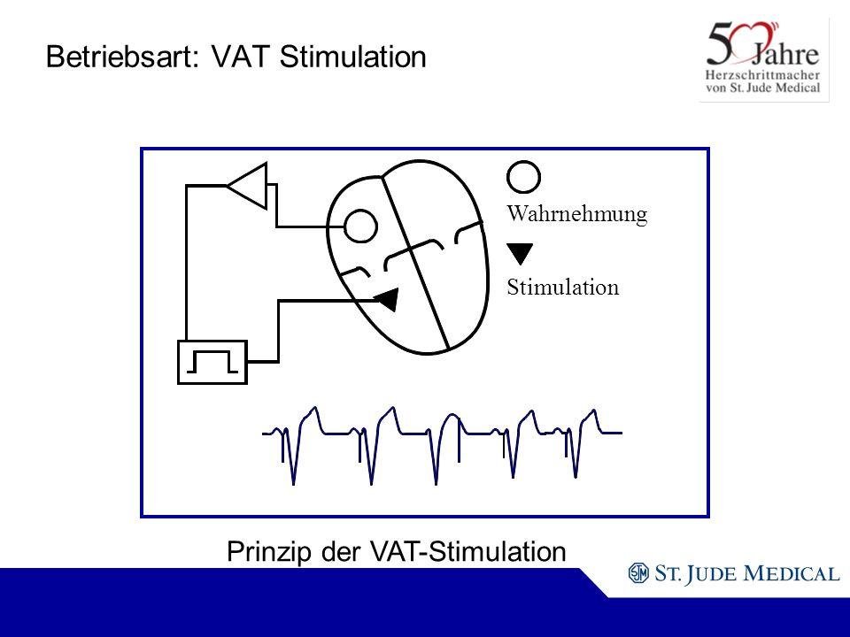Wahrnehmung Stimulation Prinzip der VAT-Stimulation Betriebsart: VAT Stimulation