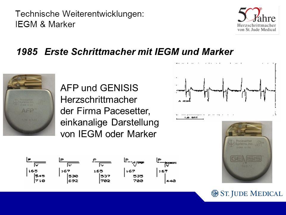 AFP und GENISIS Herzschrittmacher der Firma Pacesetter, einkanalige Darstellung von IEGM oder Marker Technische Weiterentwicklungen: IEGM & Marker 1985Erste Schrittmacher mit IEGM und Marker