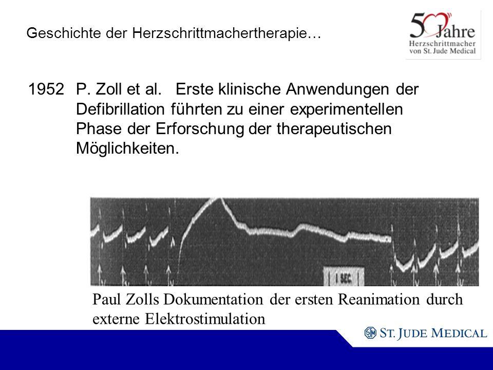 Paul Zolls Dokumentation der ersten Reanimation durch externe Elektrostimulation Geschichte der Herzschrittmachertherapie… 1952P.