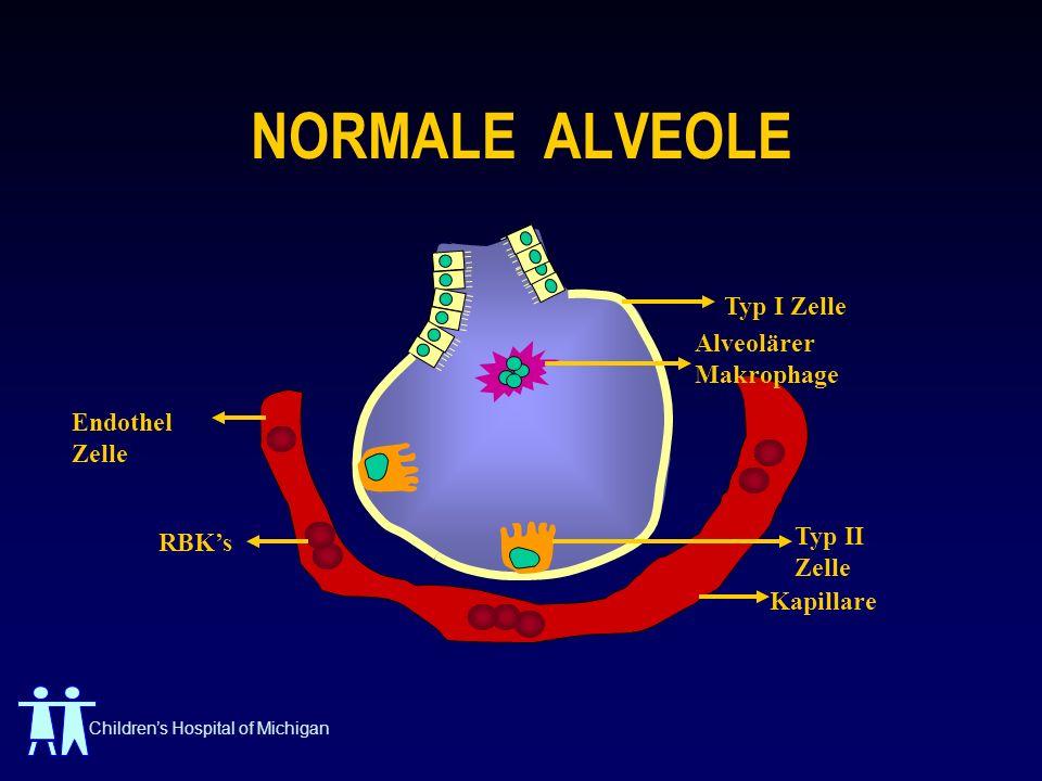 Childrens Hospital of Michigan NORMALE ALVEOLE Typ I Zelle Endothel Zelle RBKs Kapillare Alveolärer Makrophage Typ II Zelle